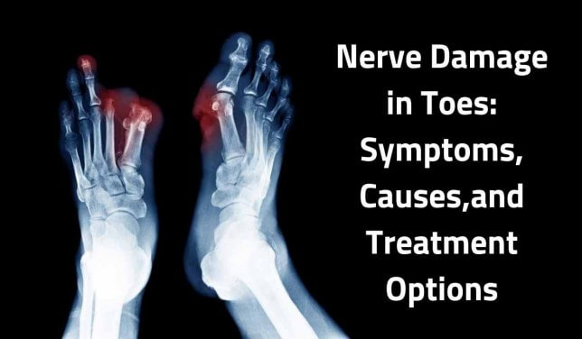 Nerve Damage in Toes