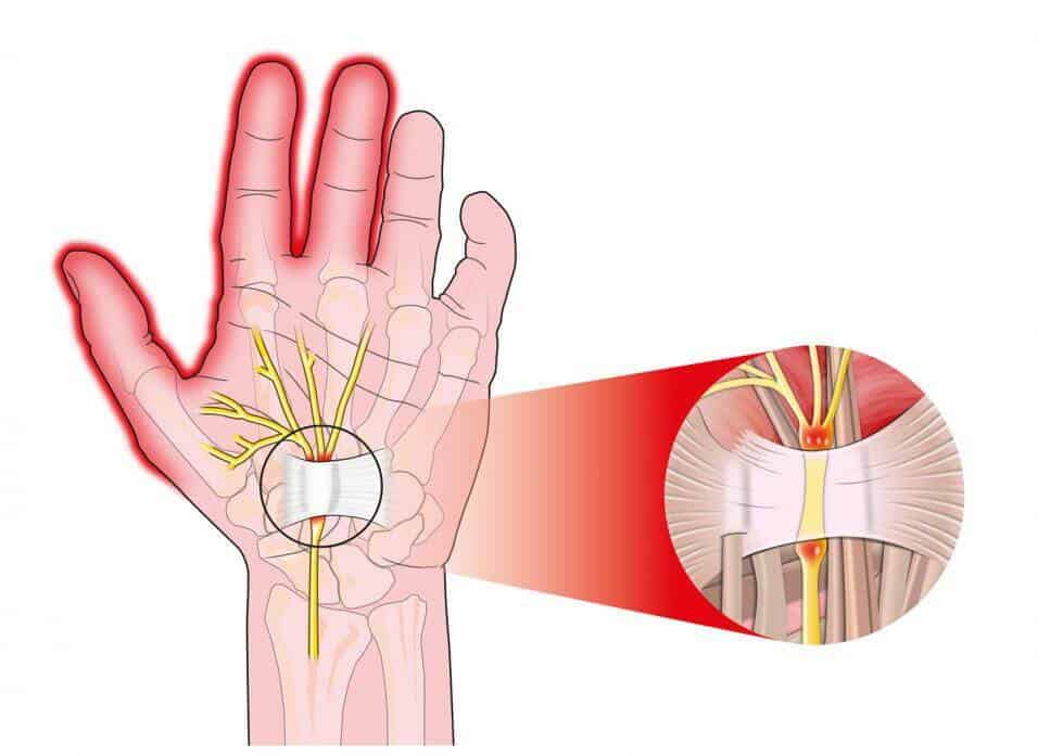 Nerve Pain in hand illustration