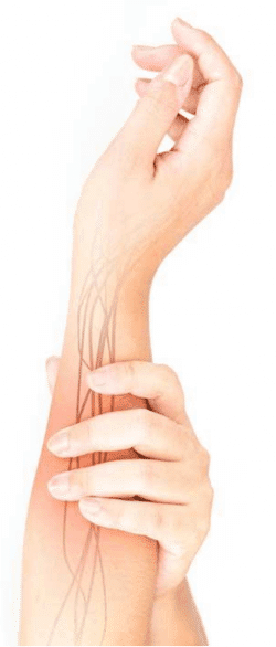 nerve pain in right arm